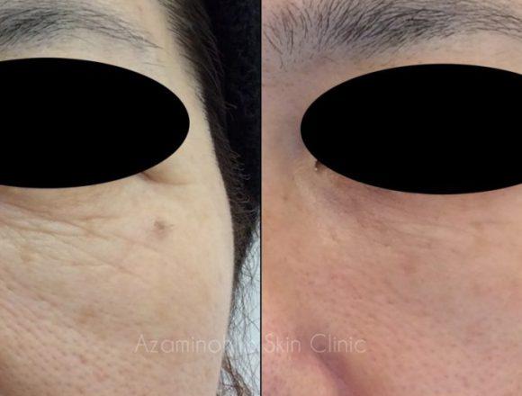 ベビーコラーゲン症例写真