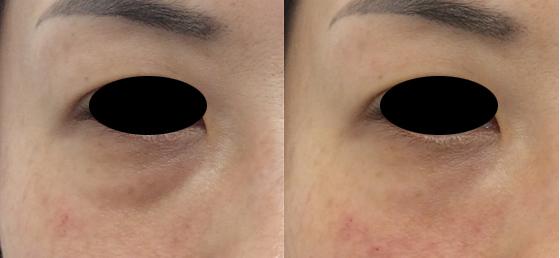 目の下のくぼみはヒアルロン酸とベビーコラーゲンで治療